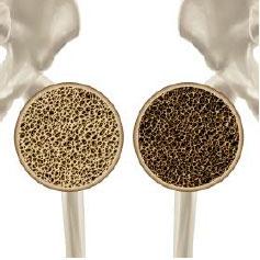 Perfil-Osteoporosis