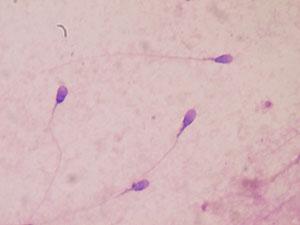 Seminograma-espermatozoides