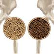 predisposicion genetica osteoporosis